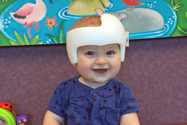 What You Need to Know About Baby Helmets | Houston Moms Blog