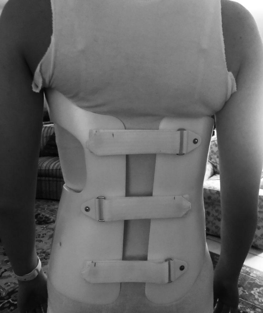 Scoliosis Awareness Month:: Bent But Not Broken